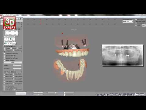 3d technology of tooth profile