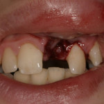 Child knocked his tooth out